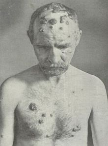 Medical photo of a man suffering with pustular syphilis